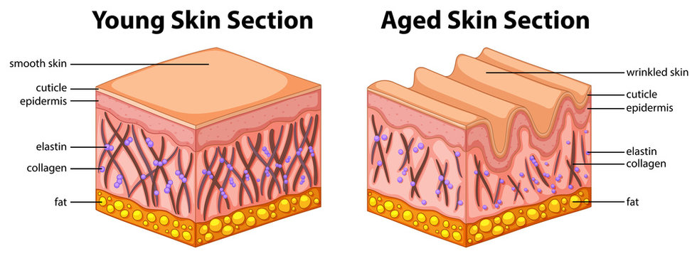 Diagram showing young and aged skin