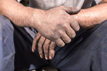 Worker Hands. Charcoal-burners worker man with dirty hands.