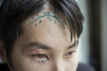 Scar on the head
