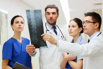 group of medics with spine x-ray scan at hospital