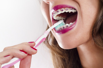 Closeup woman brushing teeth with braces