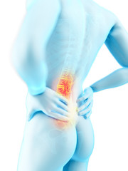 3d rendered medically accurate illustration of a man with backache