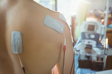 Male patient with electro stimulator electrodes on his back