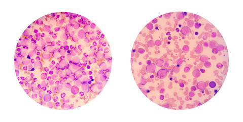 Microscopic views of a blood smear from leukemia patient show ma
