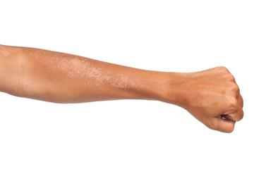 peeling of skin after burned by sunlight