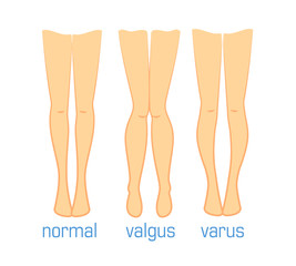 valgus varus and normal