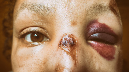 Battered woman with monocle