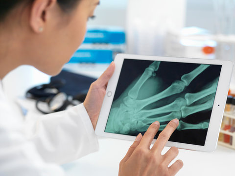 Doctor viewing X-ray of hand on digital tablet