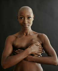 Nude African American cancer survivor covering her breasts