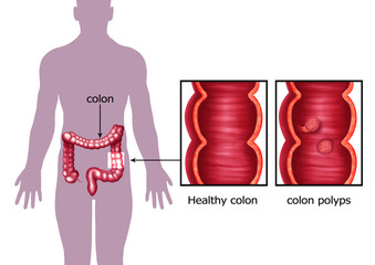 Illustration of the colon cancer