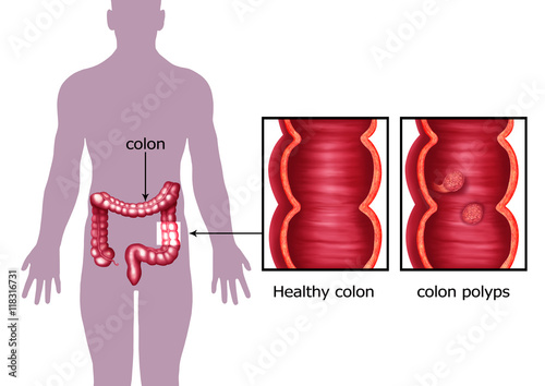 U0026quot Illustration Of The Colon Cancer  U0026quot  Stock Photo And