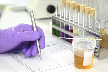 Urinprobe im Labor mit Urinteststreifen