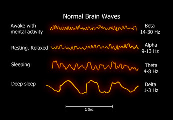 Illustration of the Normal-brain-waves
