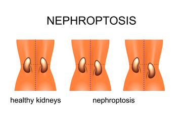 the omission of kidneys with different degree of complexity