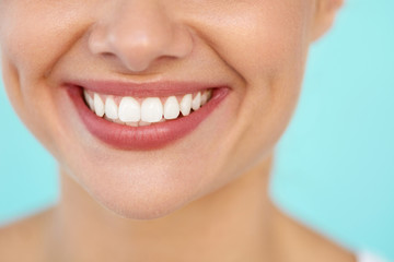 Closeup Of Beautiful Smile With White Teeth. Woman Mouth Smiling. High Resolution Image
