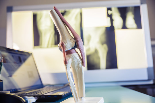 closeup scale model the layout of the artificial knee joint in x-ray leg and knee