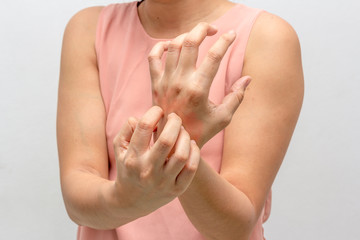 Women scratch the itch with hand. itching, Concept with Healthcare And Medicine.
