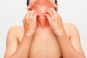 man scratch the itch with hand ,neck, itching, Concept with Healthcare And Medicine.