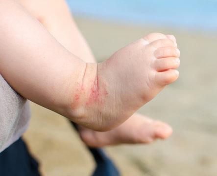 atopic dermatitis newborn feet eczema