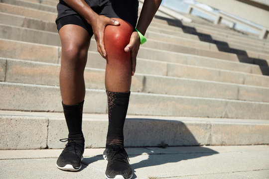 Physical injury concept. African jogger wearing black shorts and