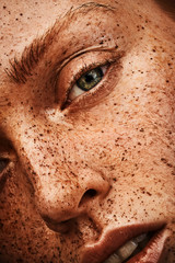 closeup beauty girl with freckles