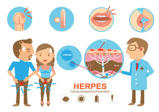 Herpes/Doctor holding diagram Herpes on the lips and genitals of the young woman And young men. Cartoon vector illustration And genitals