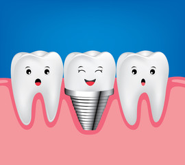 Dental implant and normal tooth beautiful bright.  Smiling screw tooth. Funny  illustration
