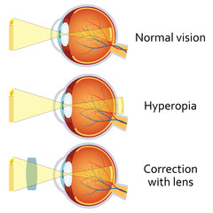 Hyperopia corrected by a plus lens.