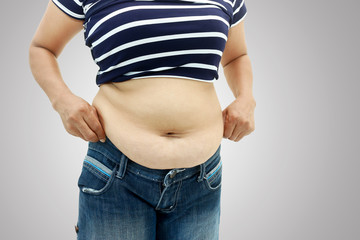 abdominal surface of fat woman