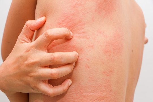 Women with symptoms of itchy urticaria.