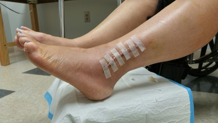 Woman's leg with post op surgical site open with strip style bandages
