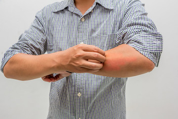 men scratch the itch with hand ,arm, itching, Concept with Healthcare And Medicine.