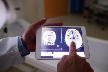 Doctor examining brain mri scan on digital tablet