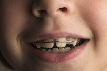Girl wearing an orthodontic dental apparatus