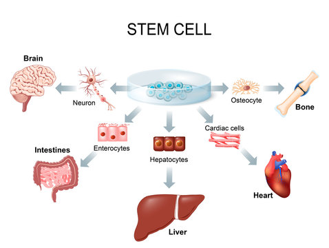 Using stem cells to treat disease