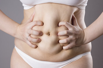 Obesity female body, fat woman belly close up