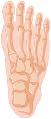 Gout in human bone