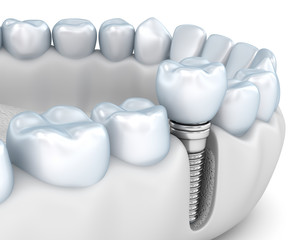 Tooth human implant, Medically accurate 3D illustration white style