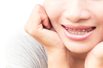 Close up woman smiling with Ceramic and Metal Braces on white ba