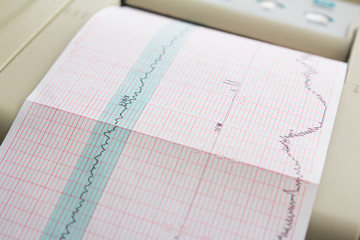 Printing of cardiogram report coming out from Electrocardiograph in labour ward