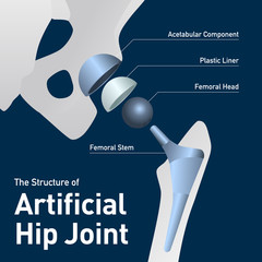 structure of the artificial hip joint, vector illustration