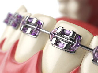 Teeth with braces or brackets in open human mouth. Dental care c
