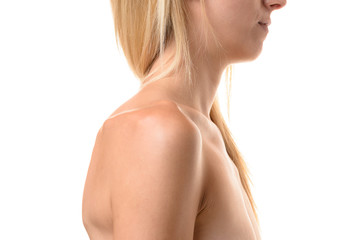 Collar bones of an undernourished woman
