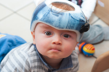 Baby in orthopedic helmet