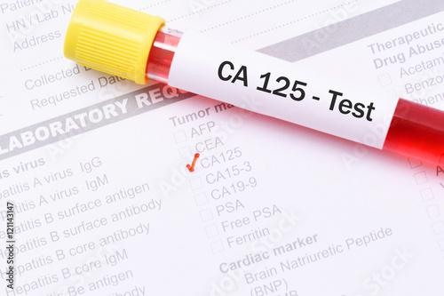 tumor markers range 187 ideas home design
