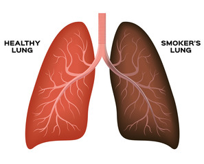 Normal lung , smoker's lung vector