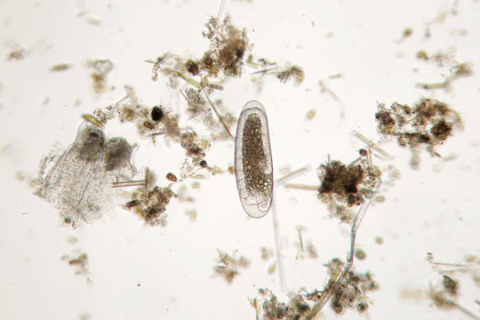 Freshwater unicellular microorganism. Zooplankton Super Macro