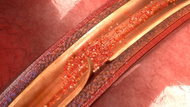 Artery Dissection