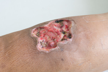 Open wound. infected wound