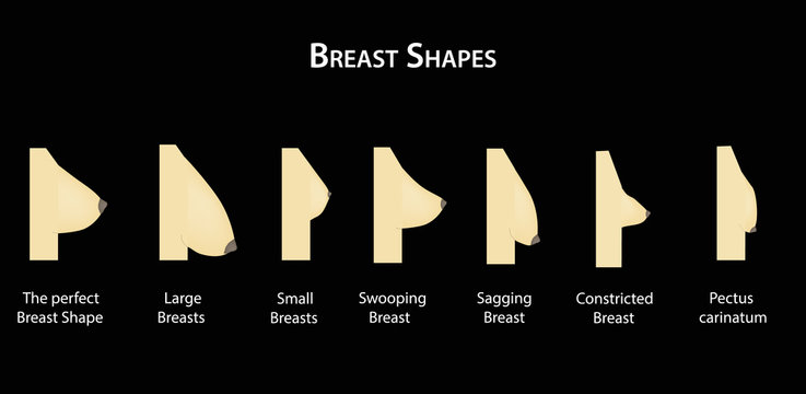 Shape the breast. Vector illustration on a black background